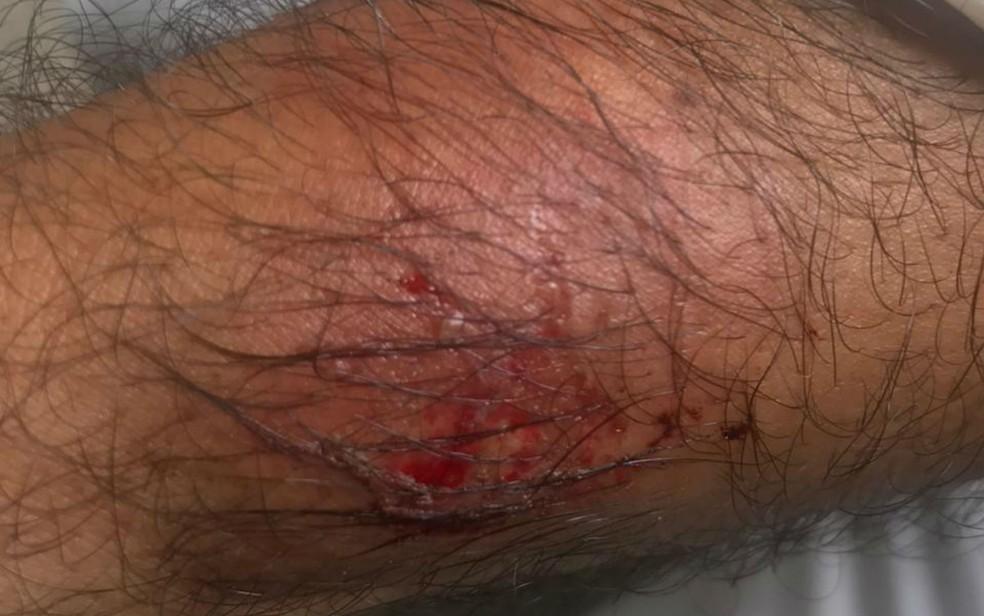 Motorista de aplicativo relata assédio e agressão após corrida durante carnaval — Foto: Arquivo pessoal
