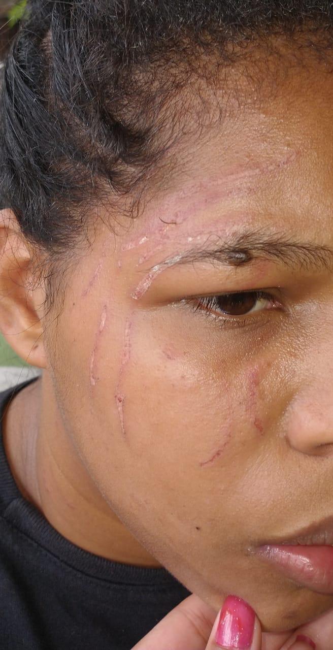 OAB acompanha caso de injúria racial contra mulher em Penedo, AL