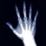 Hand X-Ray Scanner