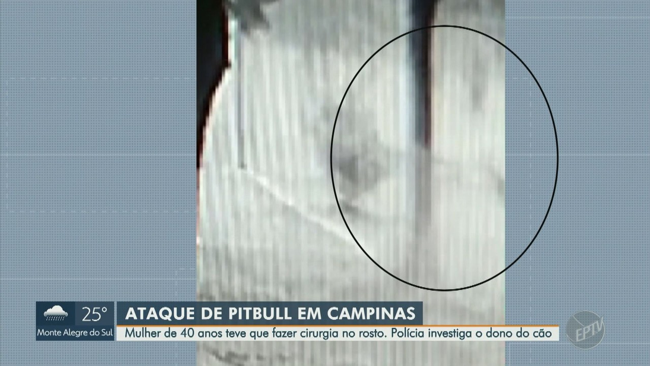 Polícia investiga caso de mulher atacada por pitbull em Campinas