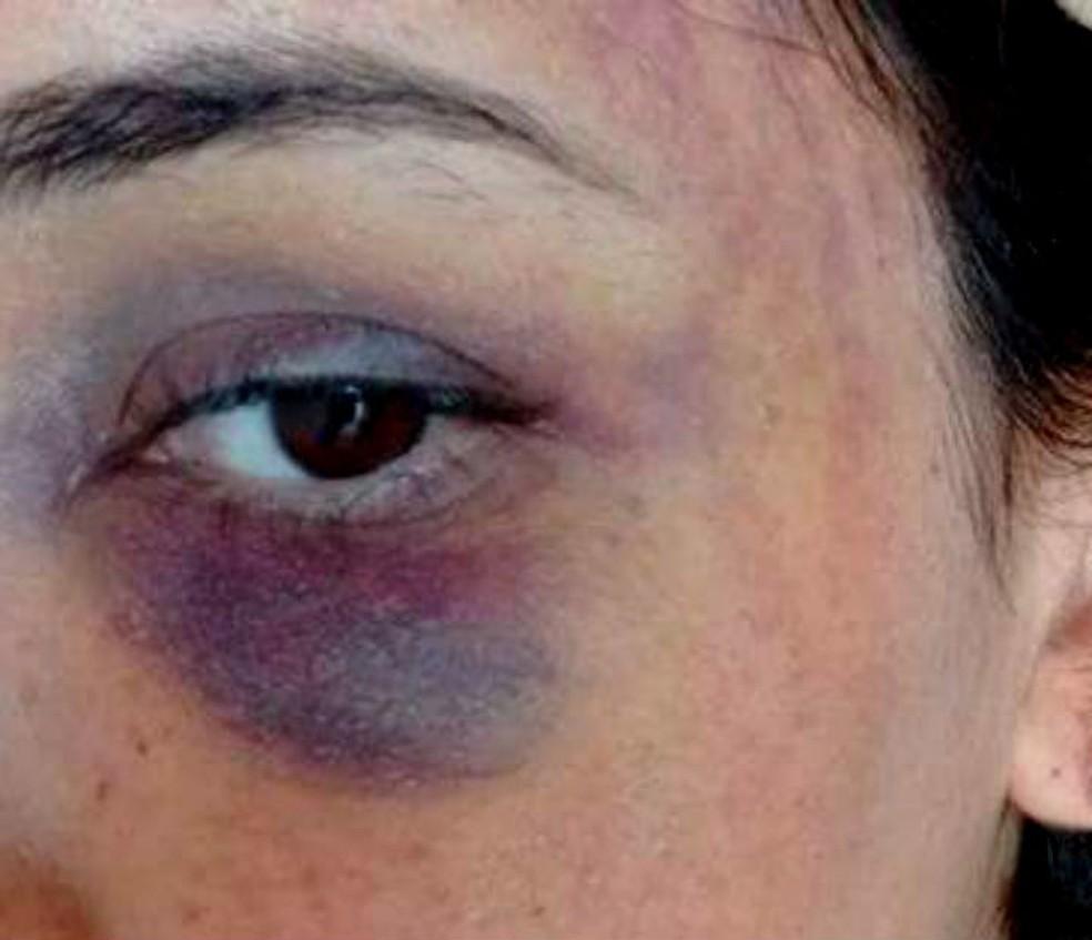 Mulher ficou com rosto cheio de hematomas após brigar com namorado na Bahia e rapaz teve costela quebrada após briga (Foto: Reprodução/Facebook)