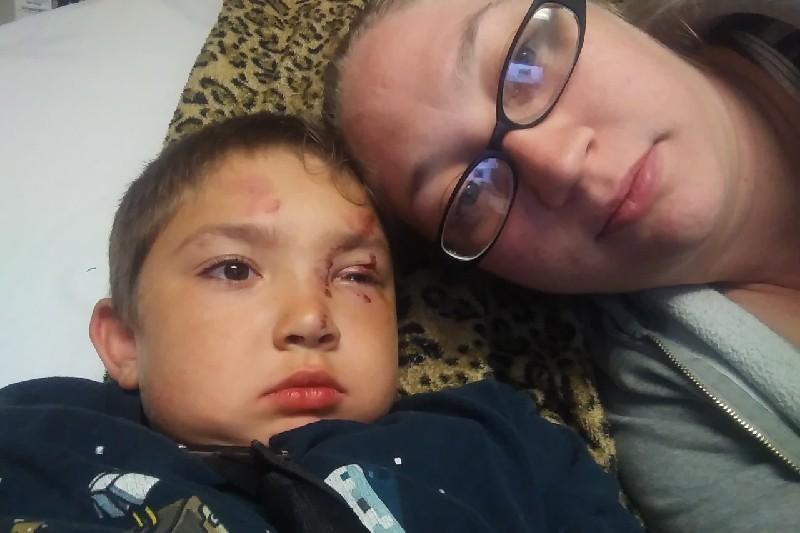 O menino ficou ferido depois de apanhar de sete crianças (Foto: Reprodução/GoFundMe)
