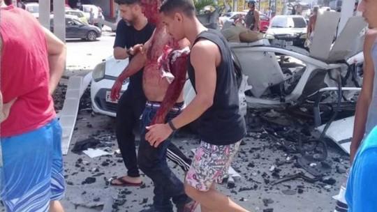 Carro explode em posto de gasolina e 2 ficam feridos em São Gonçalo