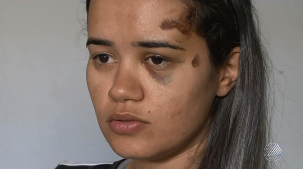Jovem denuncia ter sido espancada por ex que não aceitava fim de relacionamento na BA (Foto: Reprodução/TV Oeste)