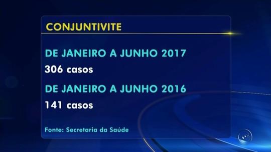 Cidades do noroeste paulista têm aumento no número de casos de conjuntivite neste ano