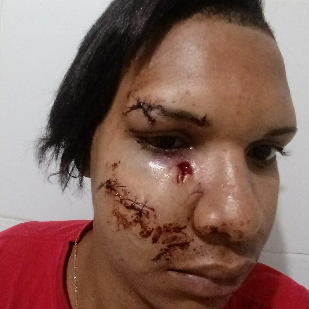 Jackson no dia em que o homem quebrou o copo na cabeça dele, em Juazeiro — Foto: Arquivo Pessoal