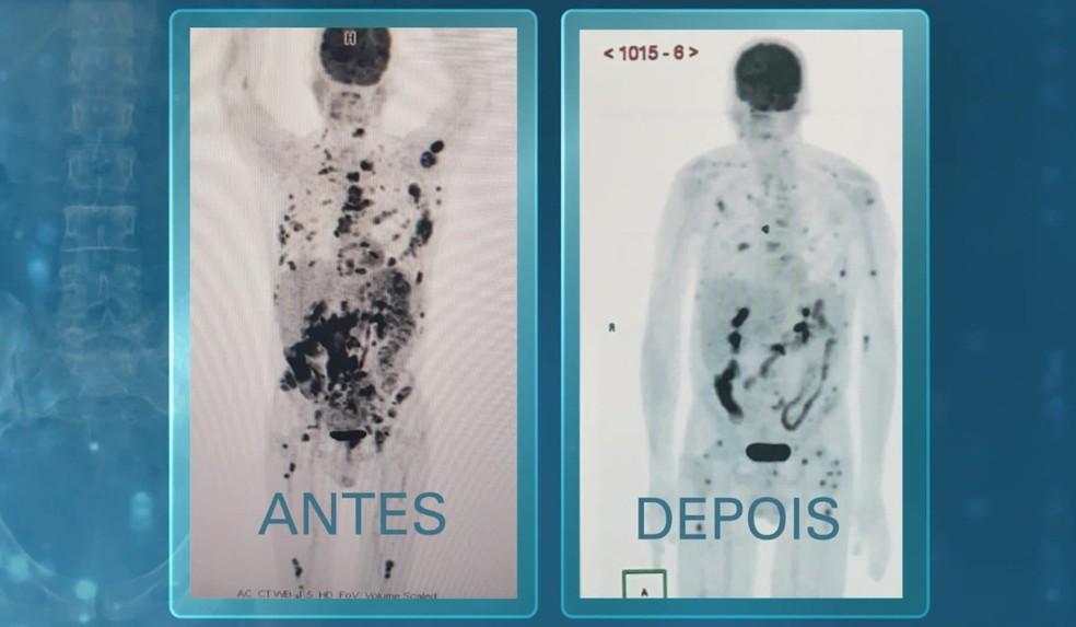 Manchas pretas no exame são tumores. O primeiro foi realizado há um mês, quando o paciente chegou ao hospital. Nesta semana, o resultado do exame mostra que a maioria das manchas desapareceu, e as que restam sinalizam a evolução da terapia.  — Foto: Reprodução/Fantástico