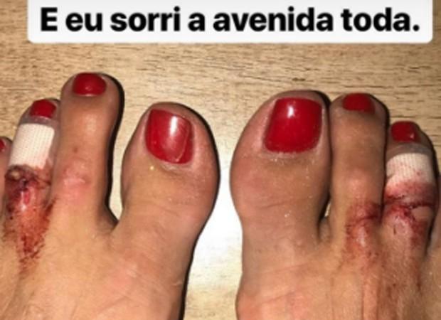 Cacau Colucci mostra pés feridos após desfile de Carnaval (Foto: Reprodução/Instagram)