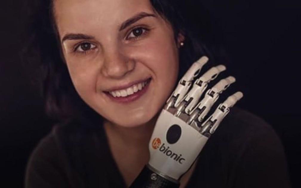 Margarita Gracheva recebeu doações para adquirir uma prótese biônica — Foto: BBC