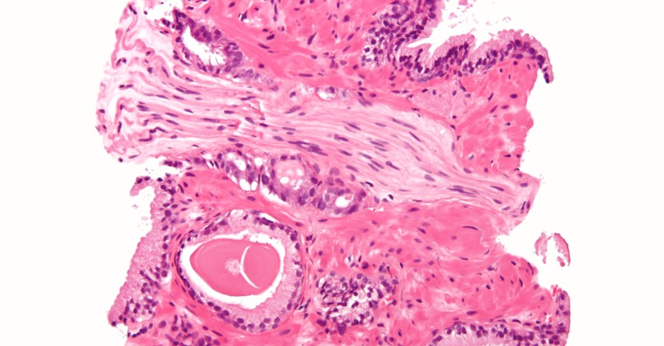 Micrografia mostrando um câncer de próstata (adenocarcinoma convencional) com invasão perineural (Foto: Wikicommus)
