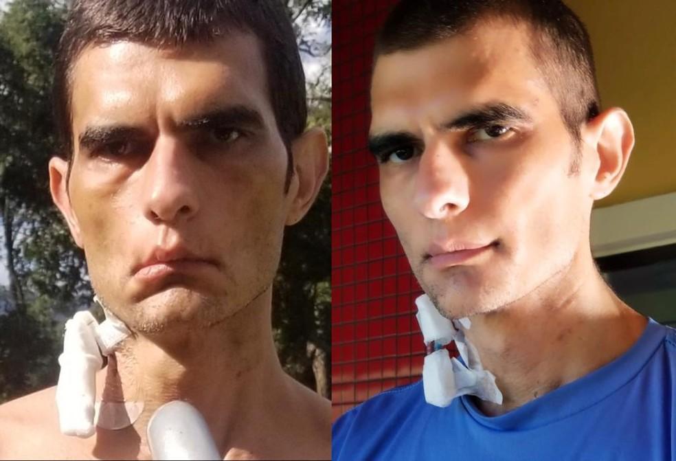 Cristiano Mauro Assis Gomes relata recuperação. À esquerda, foto tirada em 11 de abril; à direita, registro feito em 2 de maio — Foto: Cristiano Mauro Assis Gomes/Arquivo Pessoal
