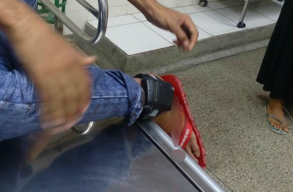 O suspeito que sobreviveu usava uma tornozeleira eletrônica — Foto: Divulgação/SSP