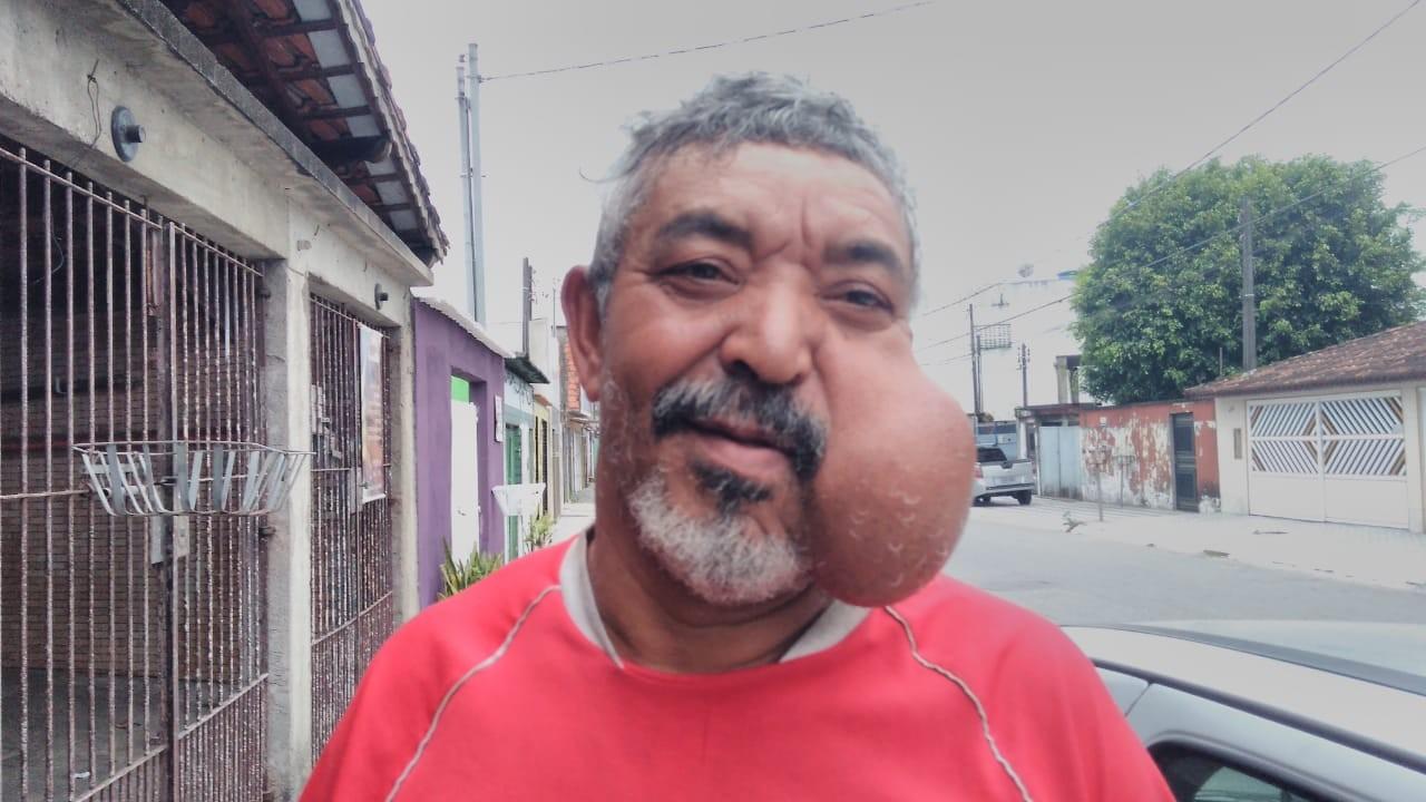 Pedreiro carrega cisto gigante no rosto há mais de 20 anos: 'Tenho vergonha' - Notícias - Plantão Diário