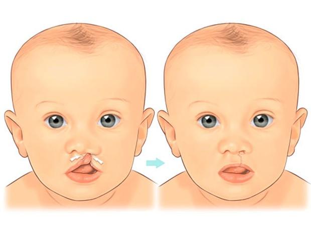 Justiça determina tratamento a crianças e adolescentes com fissura labiopalatal de MS