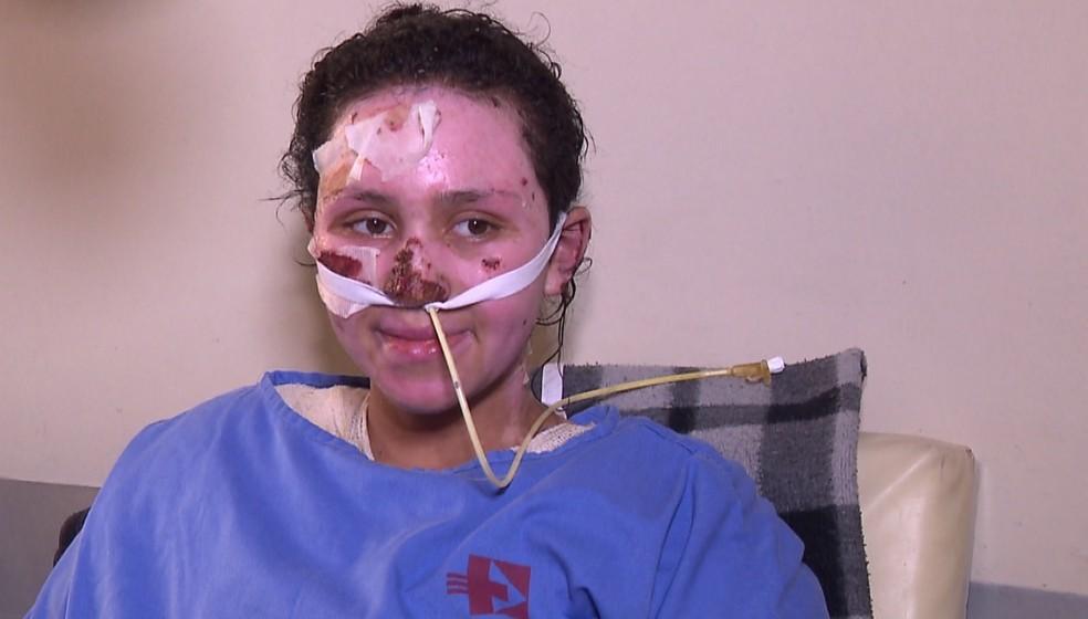 A adolescente Jackeline de Andrade, de 16 anos, queimou 60% do corpo ao resgatar o irmão em um incêndio. — Foto: Reprodução/RPC