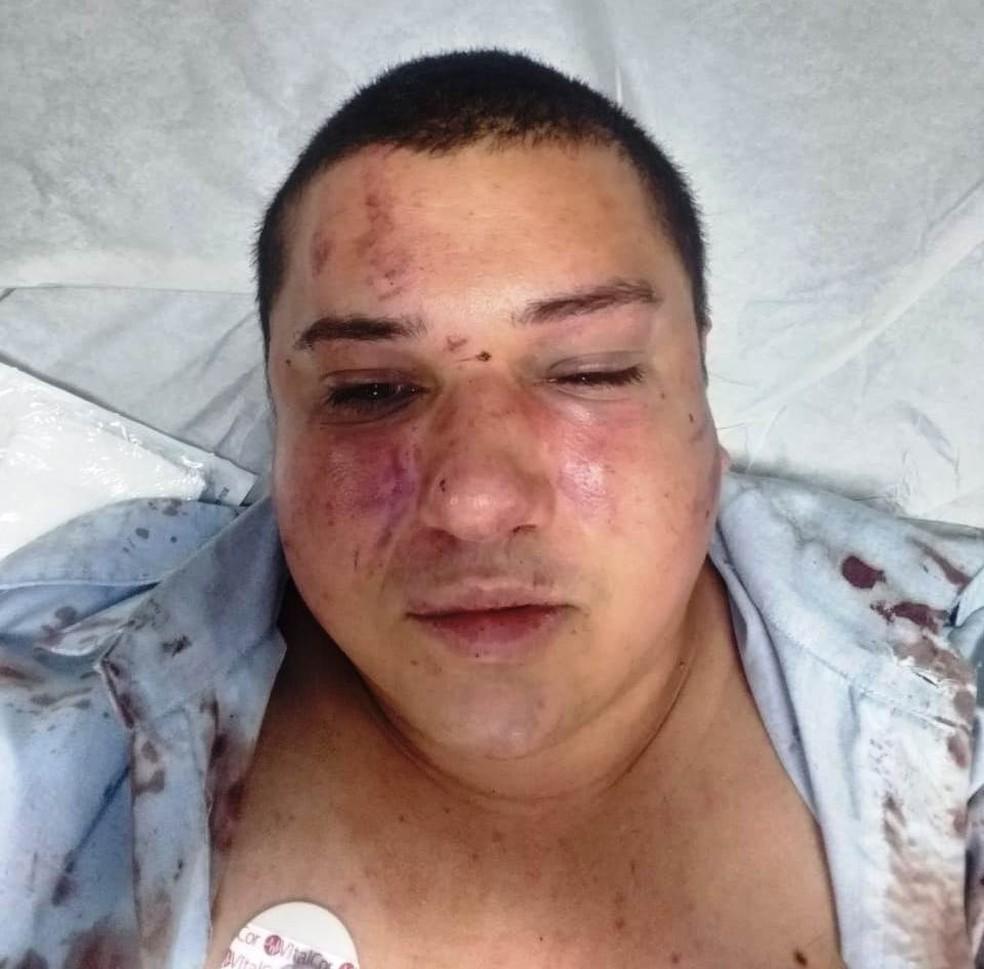 Motorista Anderson Brito, de 34 anos, foi espancado após ser acusado de assédio — Foto: Arquivo Pessoal