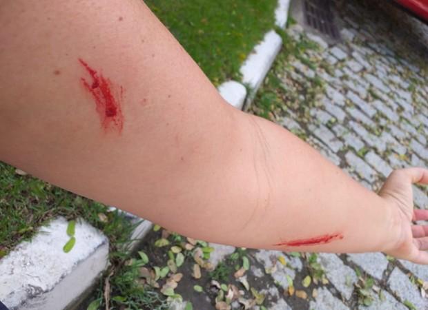 Ana Paula Almeida é agredida pelo marido (Foto: Arquivo pessoal)