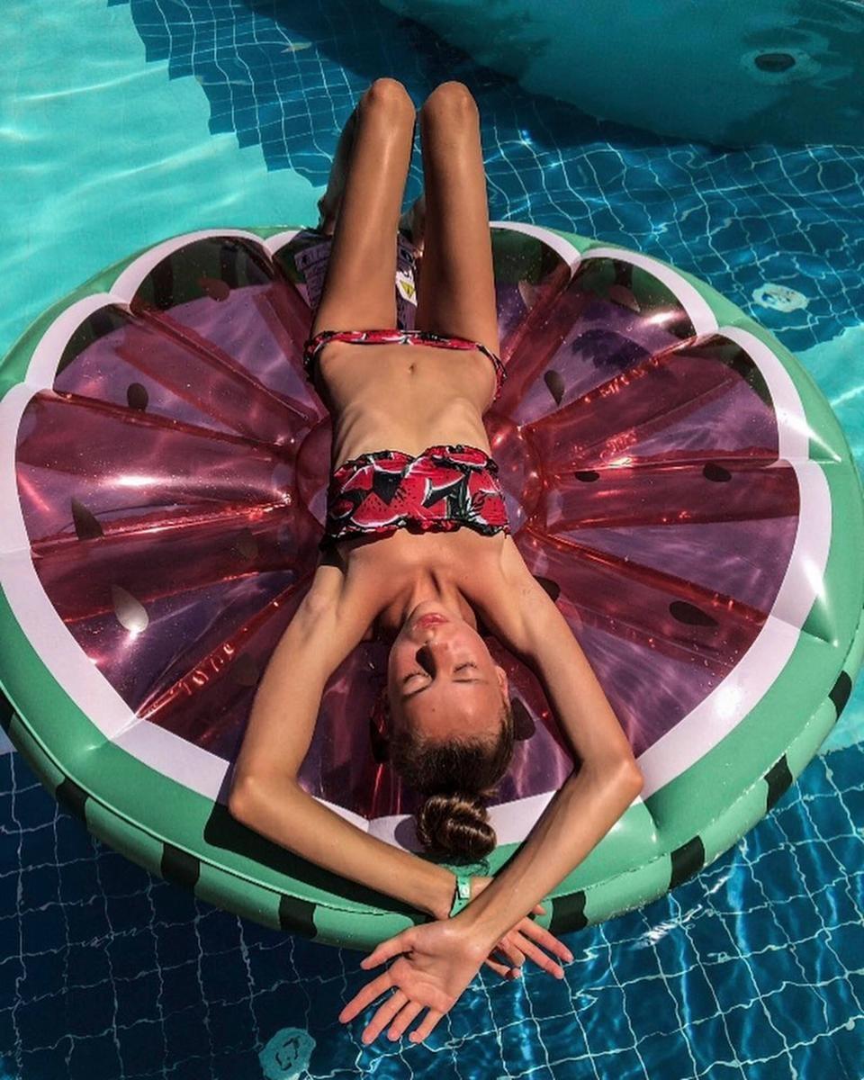 As modelo gêmeas russas Masha e Dasha Ledeneva foram hospitalizadas por excesso de perda de peso (Foto: Reprodução)