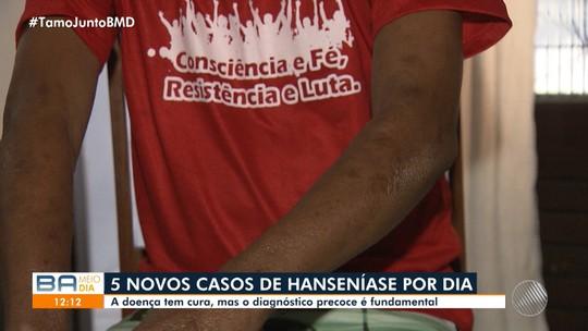 Saúde: cresce o número de pessoas com hanseníase na Bahia