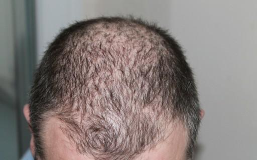 Poluição do ar tem relação com queda de cabelo