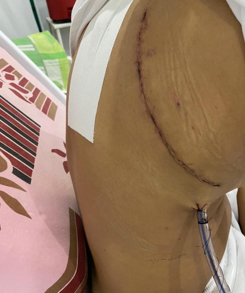 Lívia Monteiro precisou retirar parte do pulmão, e agora se recupera da cirurgia — Foto: Lívia Monteiro/Arquivo pessoal