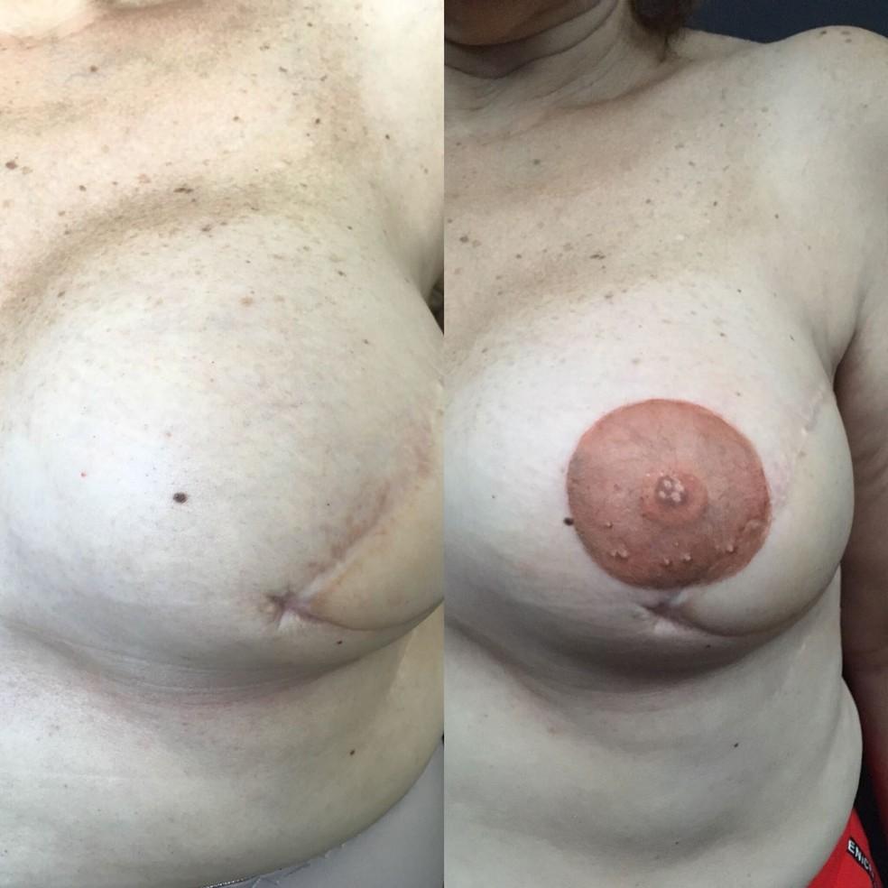 Imagem mostra antes e depois de tatuagem realista que reconstruiu auréola e mamilo de seio de paciente de câncer em Natal — Foto: Real Studio Tattoo/Cedida