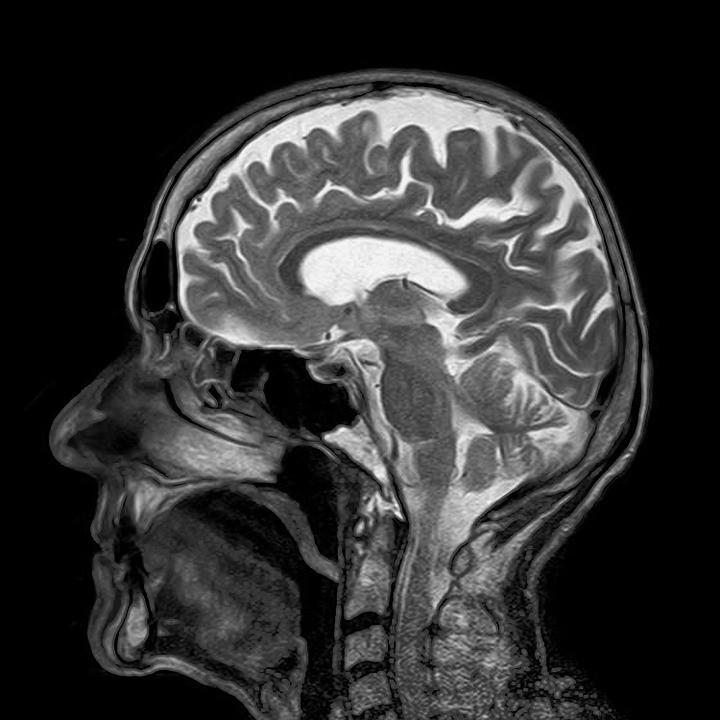 Síndrome encefalopatia e derrame causam sintomas parecidos, o que confunde o diagnóstico (Foto: Pixabay/Toubibe/Creative Commons)