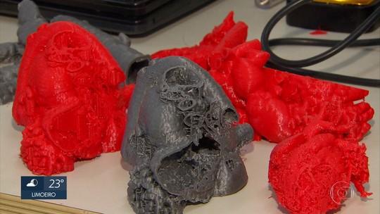 Pesquisadores imprimem corações de plástico em 3D para planejar cirurgias em PE