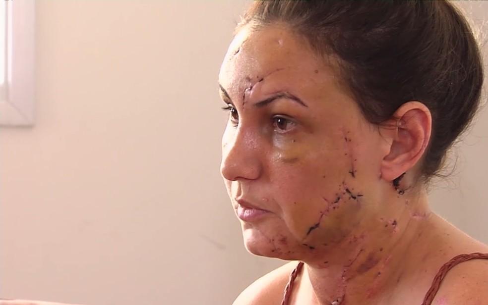 Estudante Pollyana Cristine Carvalho, 32 anos, diz que foi agredida por namorado em motel Goiânia Goiás (Foto: TV Anhanguera/Reprodução)