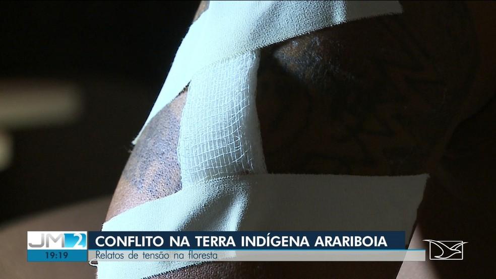 Laércio Guajajara foi atingido por disparo de espingarda no braço e se recupera bem — Foto: Reprodução/TV Mirante