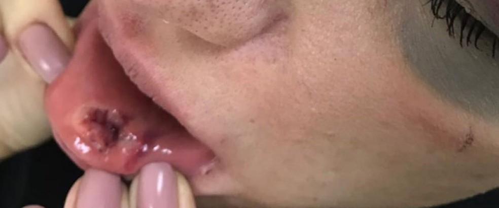 Tatiany Arci precisou levou seis pontos na boca — Foto: Arquivo Pessoal