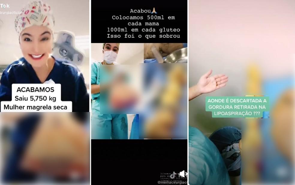 Cirurgiã plástica Caren Trisoglio Garcia, que atende em Ribeirão Preto, SP, exibe material retirado de pacientes após cirurgias — Foto: Reprodução/Tik Tok