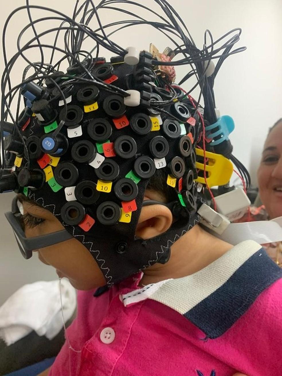 Pesquisa que identifica estímulo cerebral em crianças com microcefalia é pioneira na PB — Foto: Divulgação/Rede Cuidar