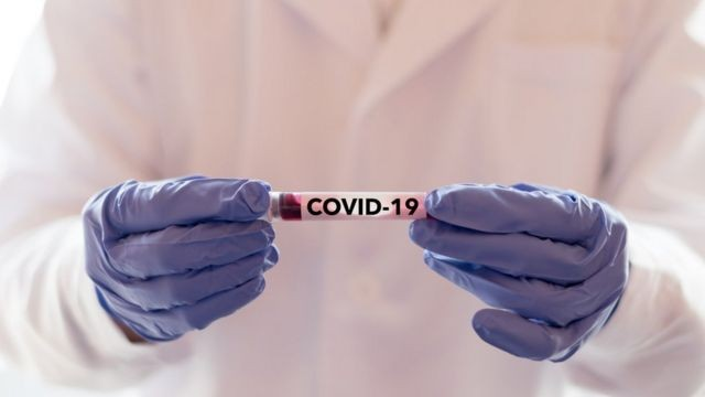 Rondônia passa dos 80 mil casos de Covid-19 e registra mais duas mortes neste domingo, 29