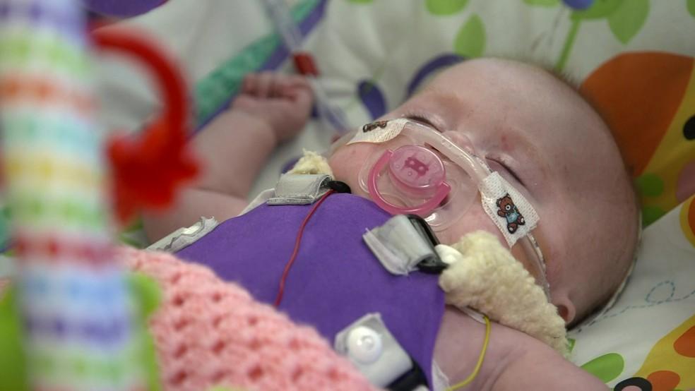 Médicos achavam que ela teria menos de 10% de chances de sobreviver — Foto: BBC