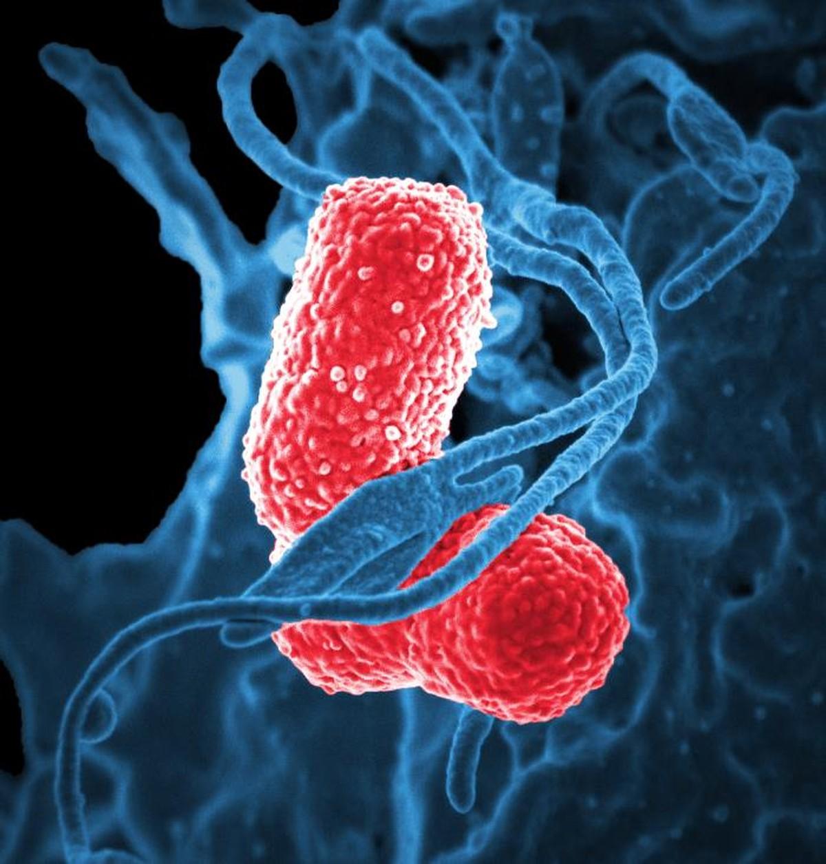 EUA identificam 221 tipos raros da 'bactéria pesadelo', aquela resistente a tratamento