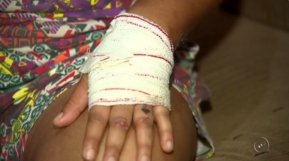 Mão de dona de acsa ficou ferida após agressão com serra elétrica em Mirassol (Foto: Reprodução/TV TEM)
