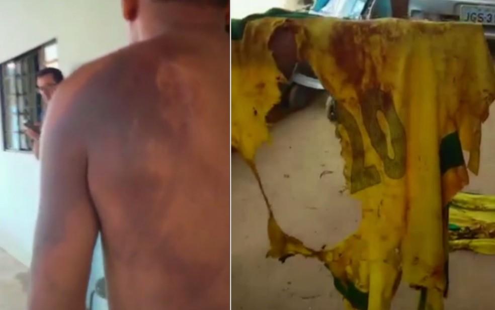 Homem teve vários ferimentos após ser atingido por raio em Goiás (Foto: Reprodução/TV Anhanguera)