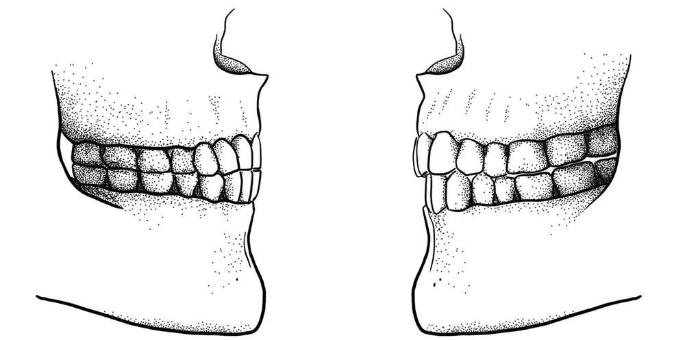 Diferença da mordida 'de ponta' em humanídeo antigo e 'mordida tesoura' em crânio moderno (Foto: Tímea Bodogán, CC BY-ND)