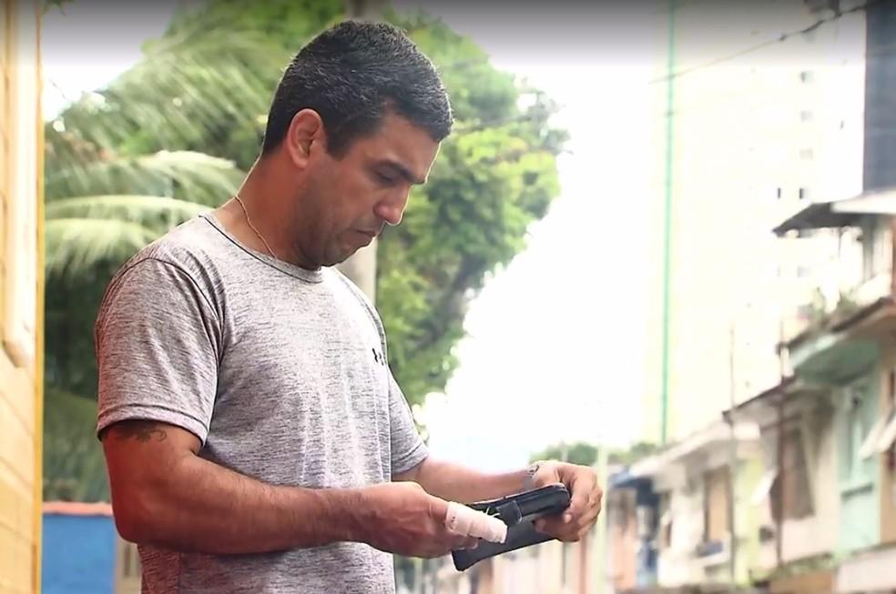 Vendedor teve queimaduras de 2º na mão e na nádega em Santos, SP (Foto: Reprodução/TV Tribuna)