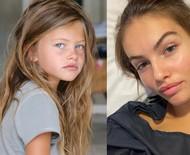 Jovem eleita 'a mais bonita do mundo' revela problema de saúde e cirurgias