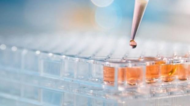 A DGLab domina a metodologia de coleta de sangue em papel filtro e armazenamento em cartão, e a Custom Biologics desenvolveu e patenteou a tecnologia DASL RAPID, de alta precisão analítica  (Foto: Custom Biologics)