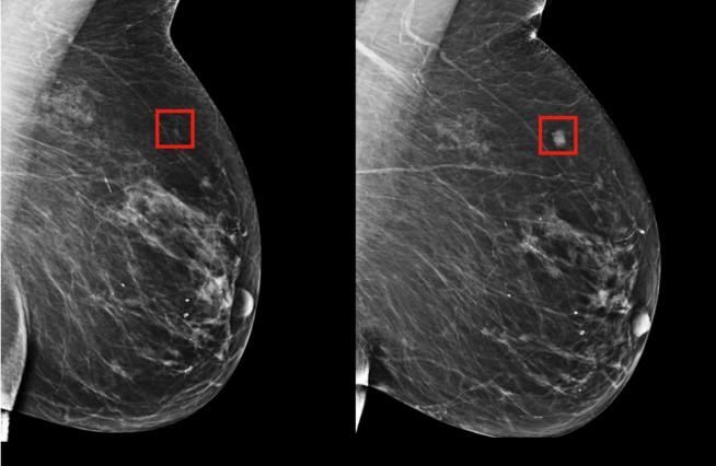 Pesquisadores identificaram o câncer de mama em uma mulher quatro anos antes ( esquerda) de ele se desenvolver ( direita). (Foto: MIT)