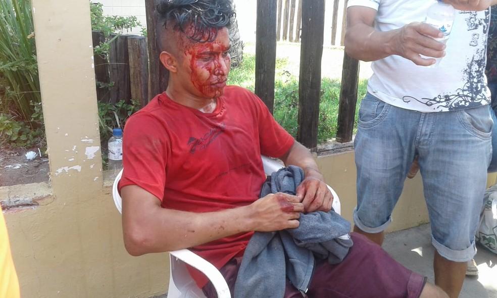 Estudante foi assaltado e levou pedrada quando ia fazer prova do Enem 2018, em Macapá — Foto: Wedson Castro/Rede Amazônica