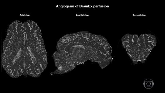 Cientistas reativam células no cérebro de porcos mortos