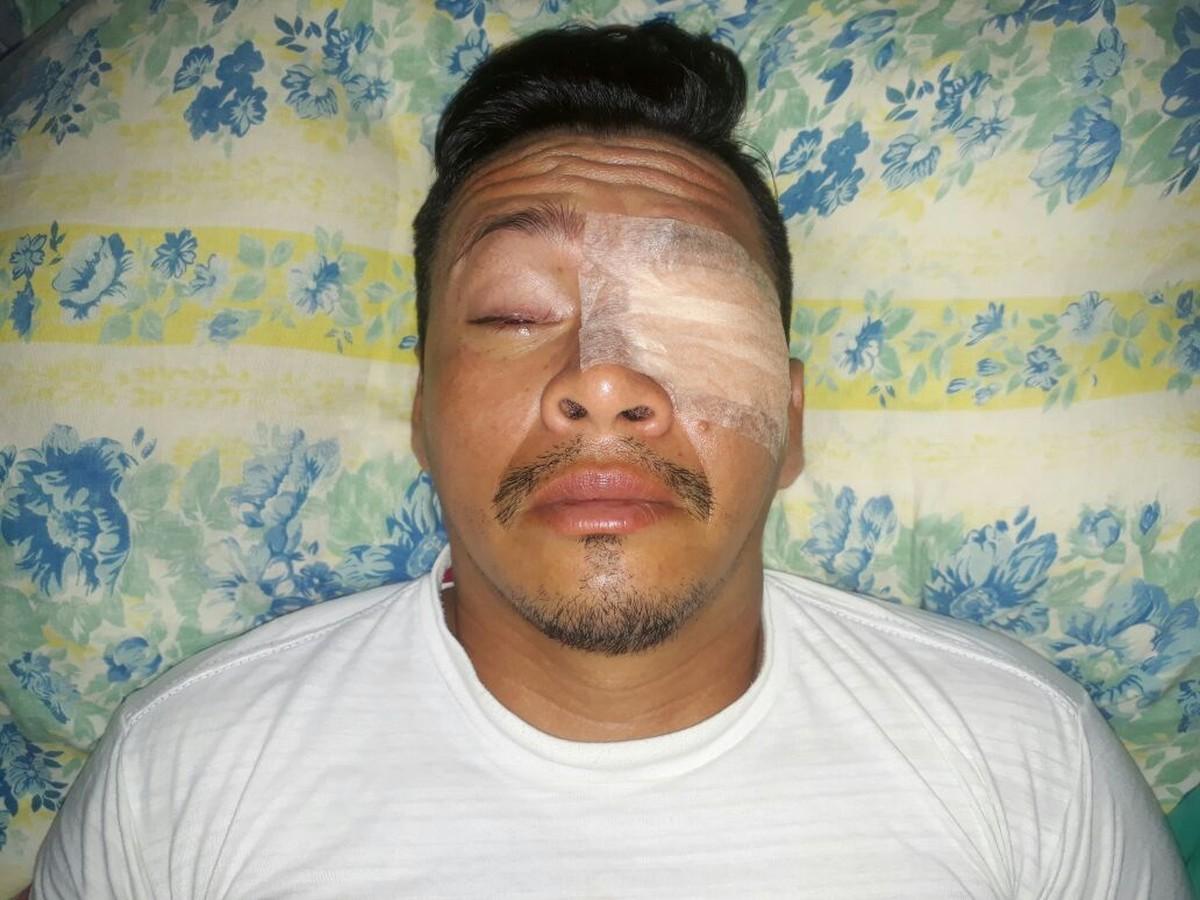 Cantor fica com olhos feridos após ser atacado com produto químico durante assalto em Roraima
