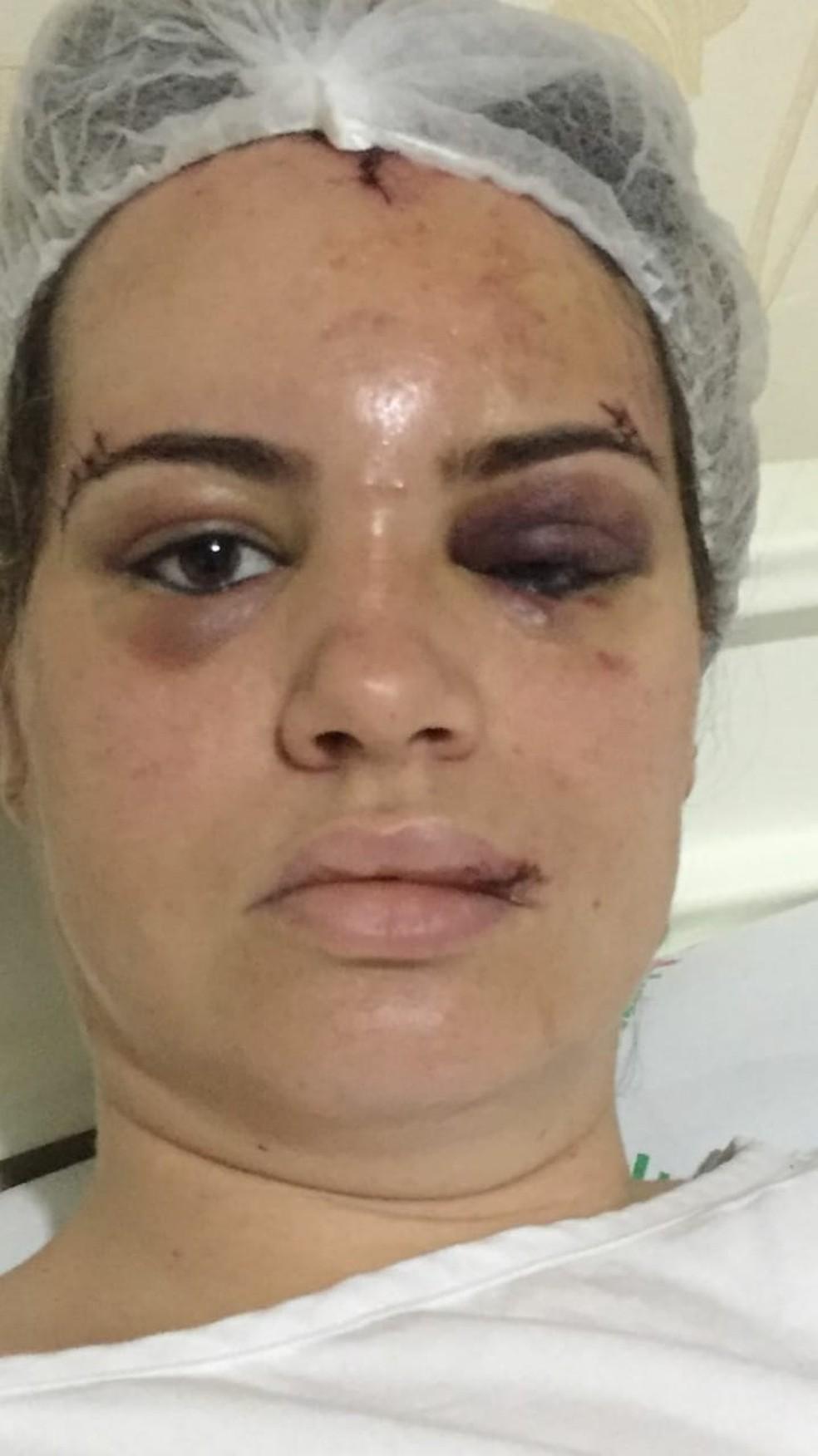 Darliane teve machucados na cabeça, nos olhos, na boca e com o nariz quebrado. (Foto: Arquivo pessoal)