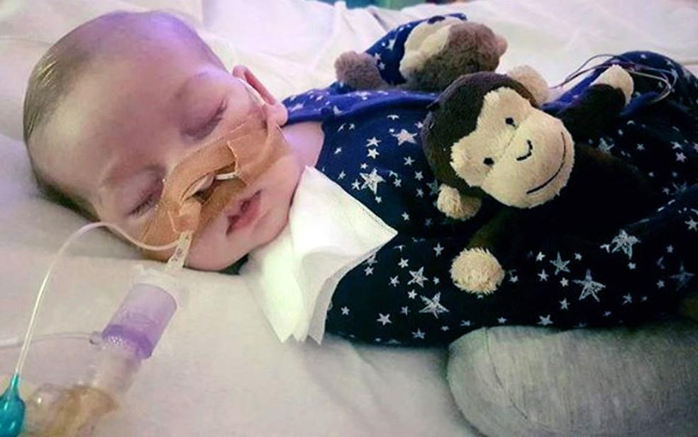 A síndrome rara de Charlie Gard impede que ele se mova (Foto: Family of Charlie Gard via AP)