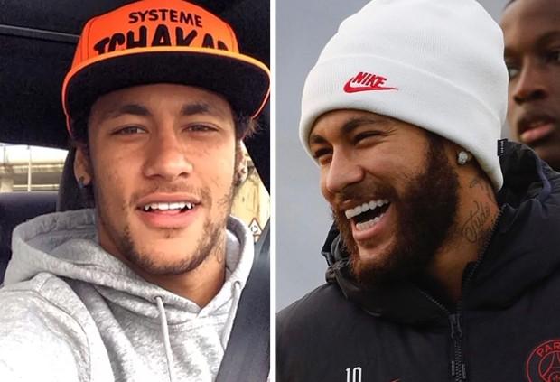 Antes e depois dos dentes de Neymar (Foto: Reprodução/Instagram)