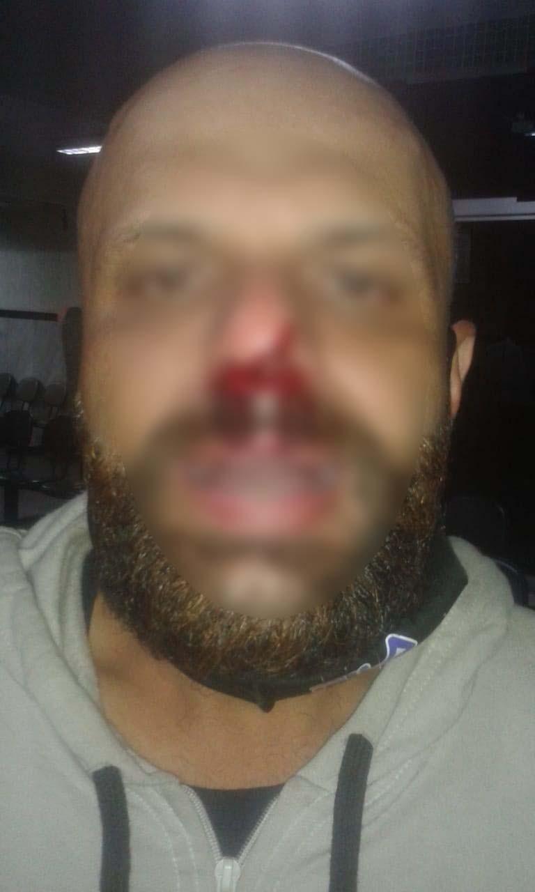 Paciente afirma ter sido espancado em hospital de SP ao ser confundido com morador de rua: 'Fui humilhado'